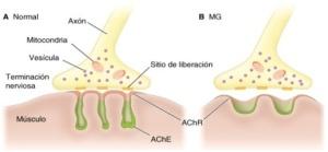 Trasmisión del impulso nervioso en la Miastenia Gravis (MG)